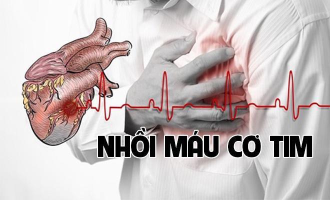 Những người bị đau thắt ngực không ổn định có nguy cơ cao bị nhồi máu cơ tim